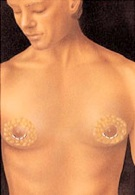 breast_augmentation-2.jpg
