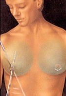 breast_reduction-3.jpg