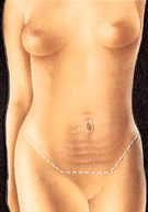 breast_lift-5.jpg