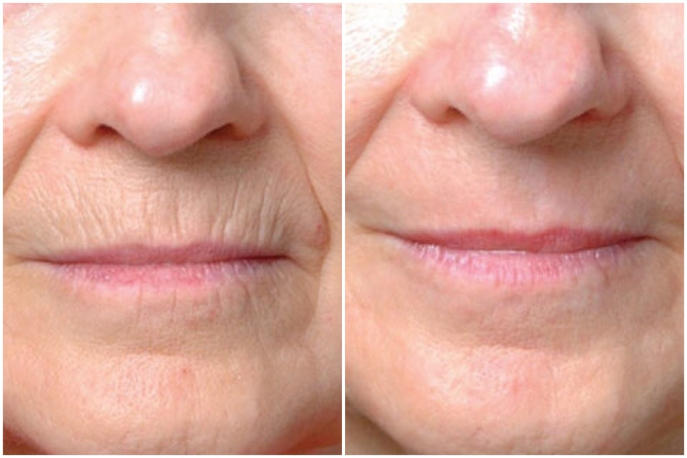 Before and 1 Month After Laser Resurfacing