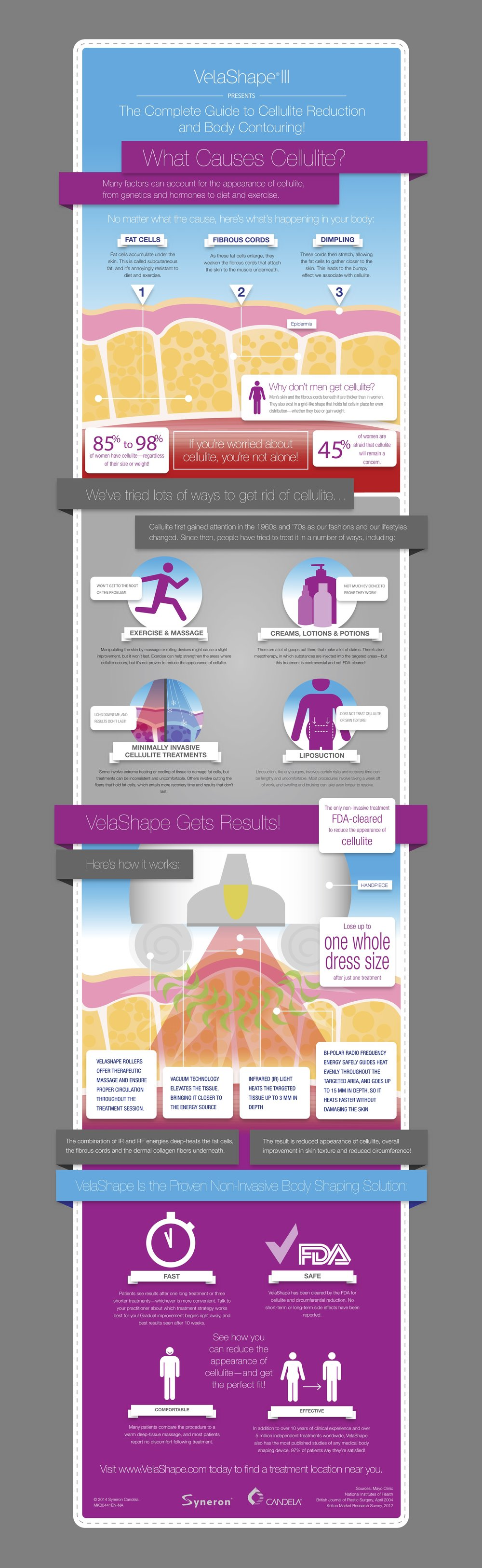 MK00441EN-NA_VelaShape-Infographic-16inx60in_outlined_web.jpg