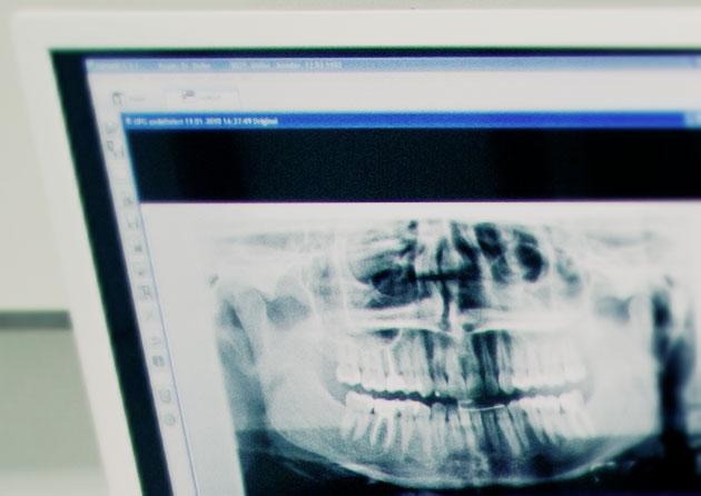 oralchirurgie_SCH_9562.jpg