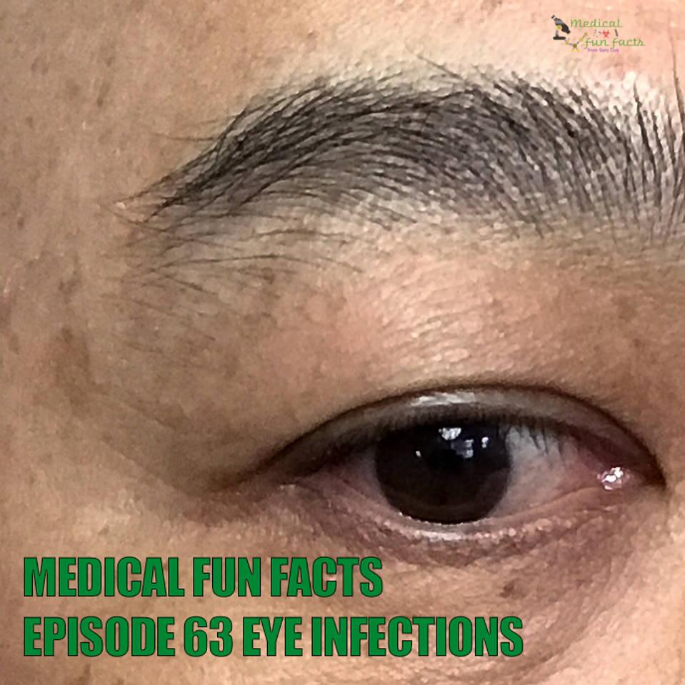 MFF Eye Infections