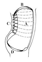 The Inner Unit consists of A) Transversus Abdominis (TVA) & posterior fibres of Obliquus Internus, B) Diaphragm, C) Deep Multifidus, D) Pelvic Floor Musculature.