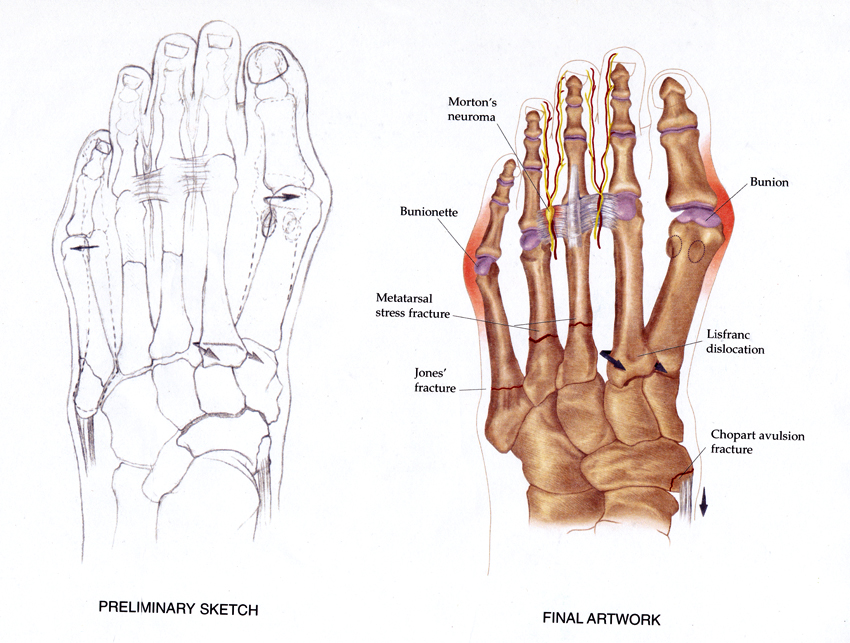 Foot Fractures (Sketch & Final Art)