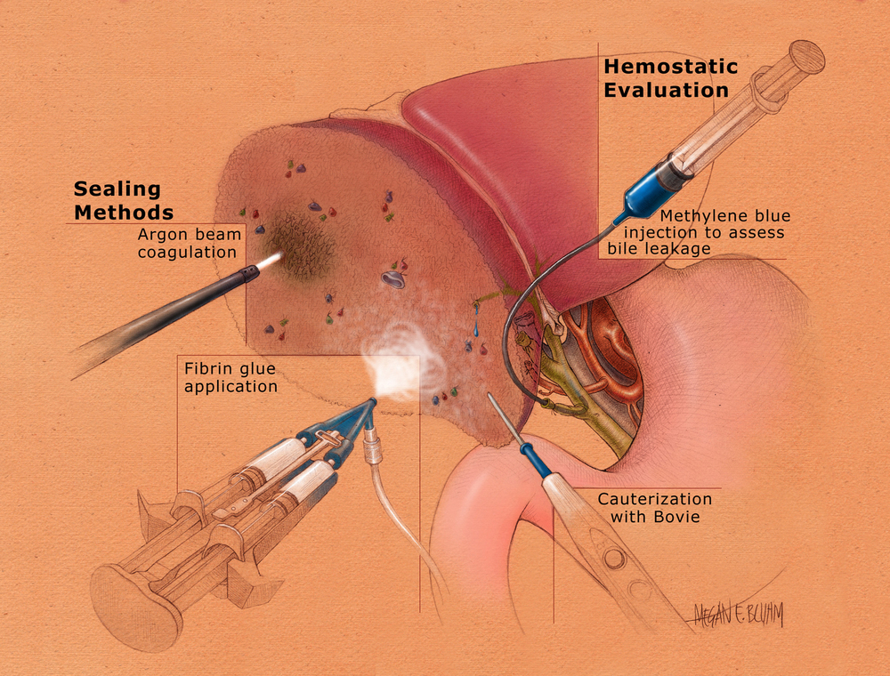 Sealing After Hepatic Resection