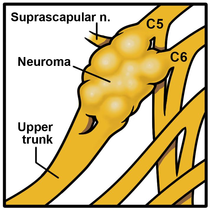Brachial Plexus Neuroma