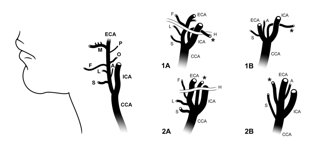 Carotid Branching Patterns