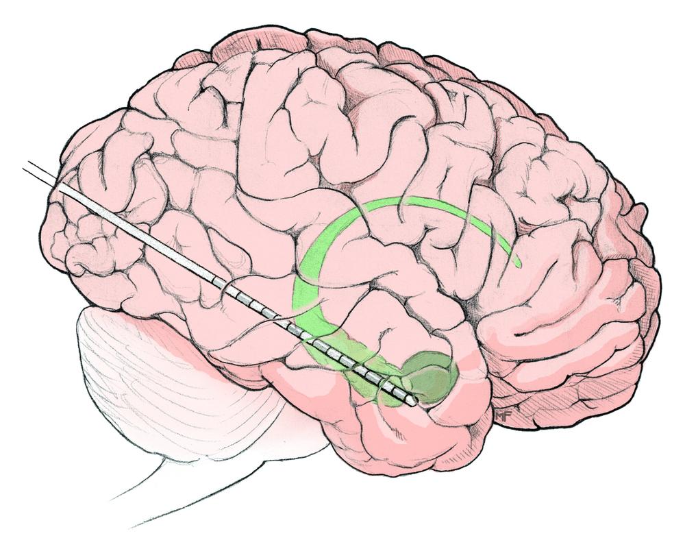 Epilepsy Depth Electrode