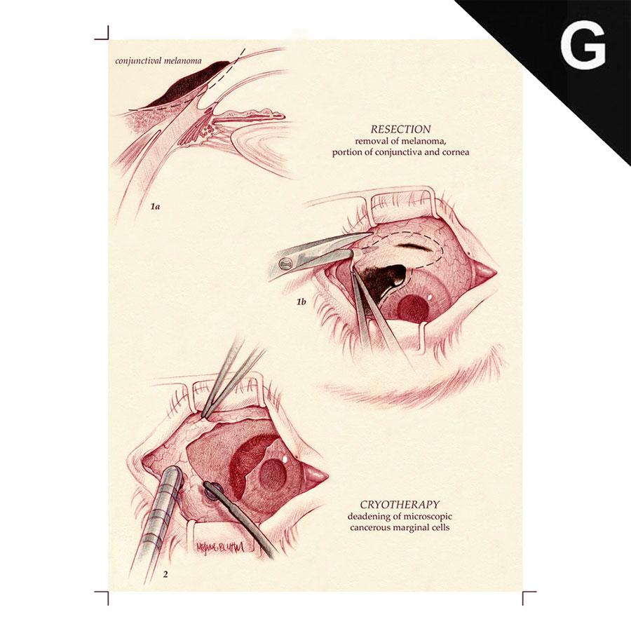 eye_surgery_002.jpg