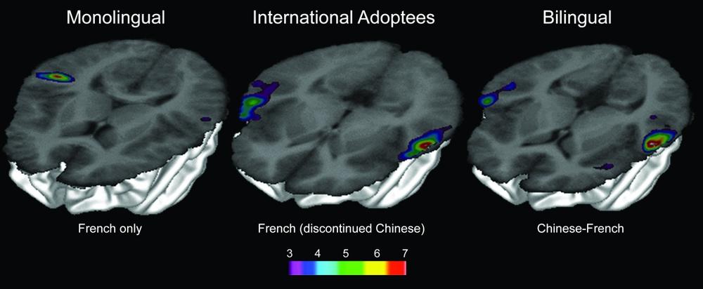 Tomograf aktywacji obszarów mózgu w badaniu przeprowadzonym w Montrealu: osobyjednojęzycznemówiącepo francusku (po lewej), jednojęzycznemówiącepo francusku, któreadoptowanoz Chin w wieku 12 miesięcy(w środku) i dwujęzycznemówiącepo francusku i po chińsku (po prawej).