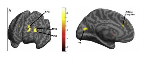 Obszary mózgu, które u osób jednojęzycznych w przeprowadzonym badaniu wykazały wzmożoną aktywność. (Żródło: cytowany artykuł)
