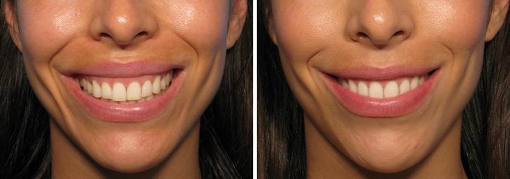 botox-smile.jpg