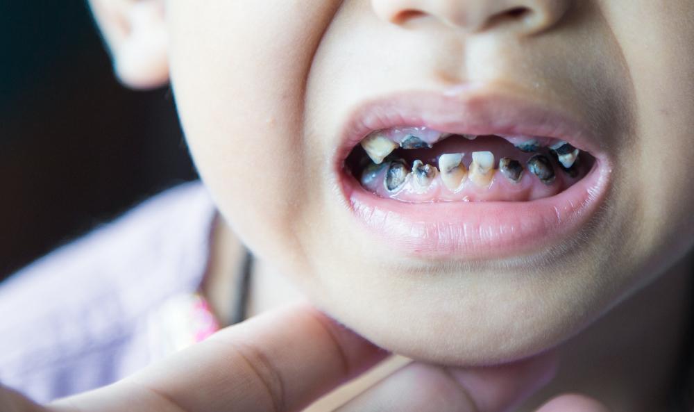 Bad-Teeth-2.jpg