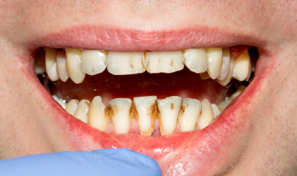 Bad-Teeth.jpg