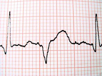 process pulse.jpg