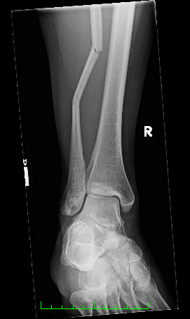 broken-fibula