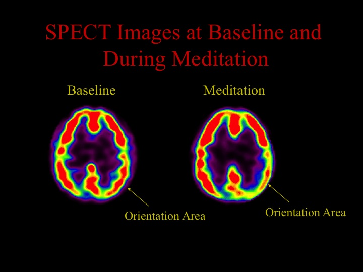 To look at the neurophysiology of religious and spiritual practices, we used a brain imaging technology called single photon emission computed tomography (SPECT), which allows us to measure blood flow. The more blood flow a brain area has, the more active it is (red > yellow > green > blue > black). When we scanned the brains of Tibetan Buddhist meditators, we found decreased activity in the parietal lobe during meditation (lower right shows up as yellow rather than the red in the left image). This area of the brain is responsible for giving us a sense of our orientation in space and time. We hypothesize that blocking all sensory and cognitive input into this area during meditation is associated with the sense of no space and no time that is so often described in meditation.