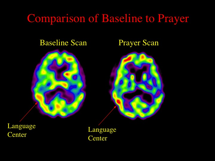 When we looked at the brains of Franciscan nuns in prayer, we found increased activity in the frontal lobes (same as Buddhists), but also increased activity in the inferior parietal lobe (the language area). This latter finding makes sense in relation to the nuns doing a verbally based practice (prayer) rather than visualization (meditation).