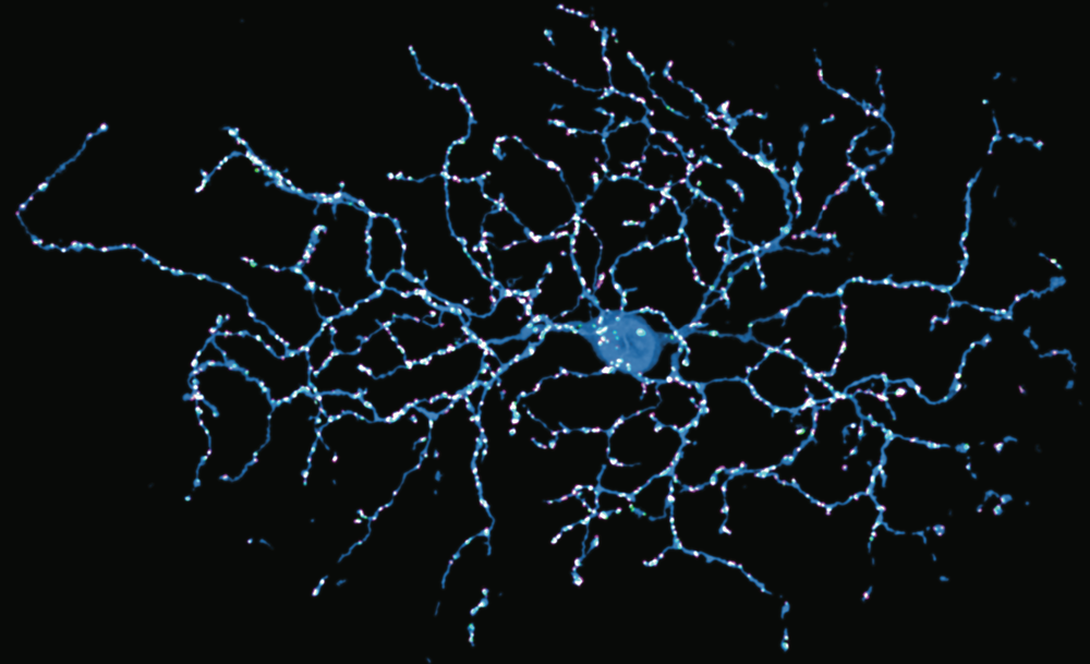 Neuron picture high res.png