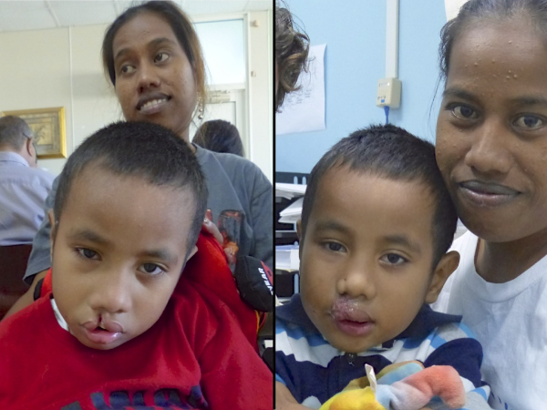 Before/after shots of one of the cleft lip patients.