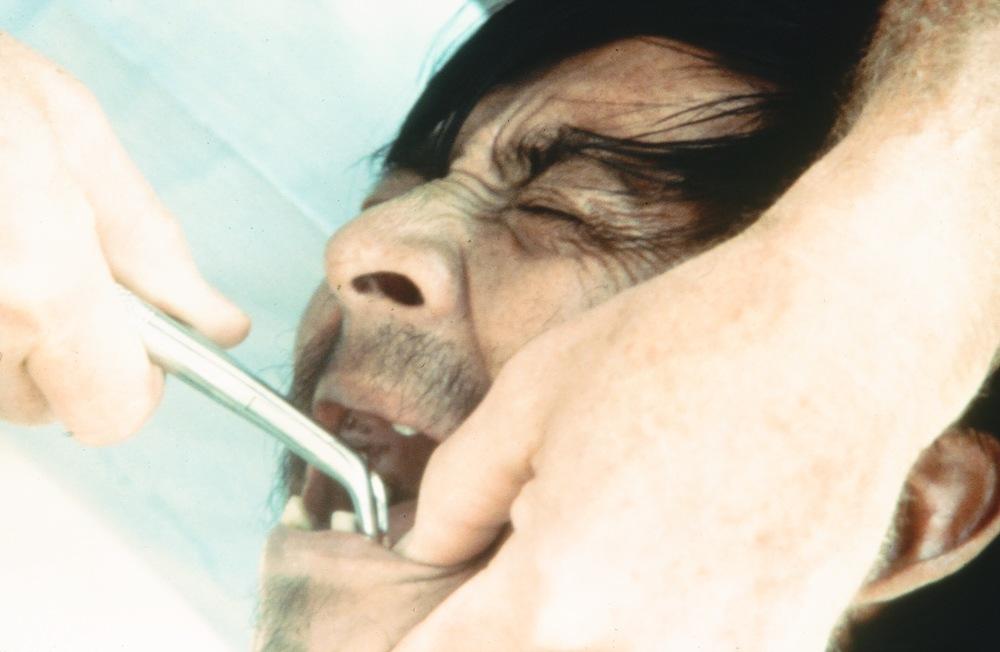 toothabscess