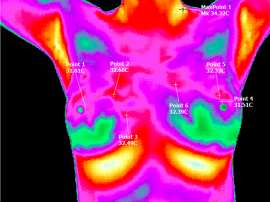 This is my Thermography scan from May 2016