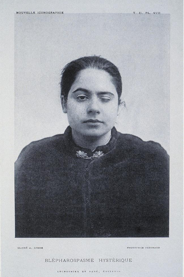 "J.M. Charcot, ""Photograph of Hysterical Wink"" (1889)"
