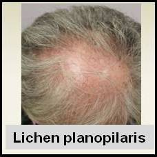 topical steroids alopecia areata
