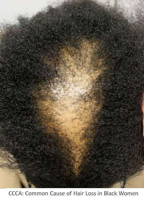 Hair Loss In Black Women Ccca Donovan Hair Clinic