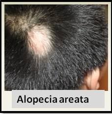 Medical Definition of Alopecia