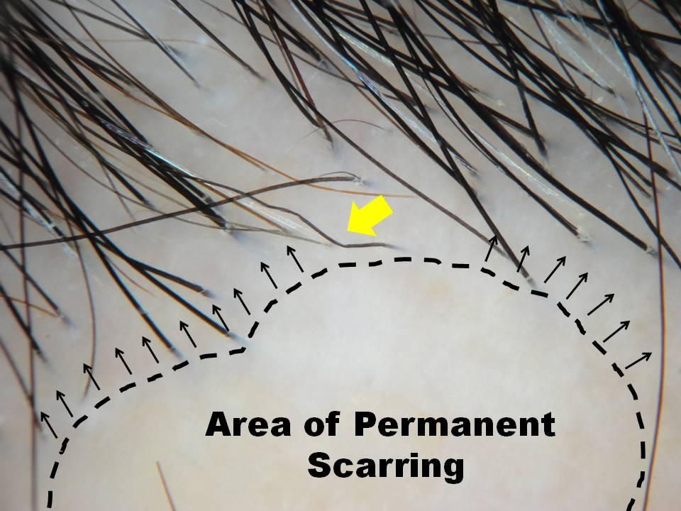 photomicrograph scarring alopecia.jpg