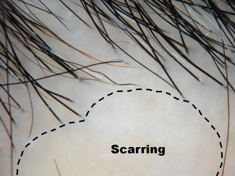 a scarring alopecia.jpg