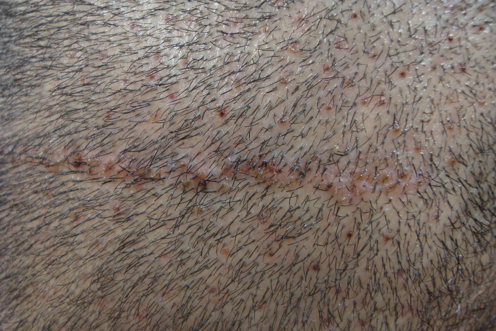 New hair follicles transplanted into a scar.
