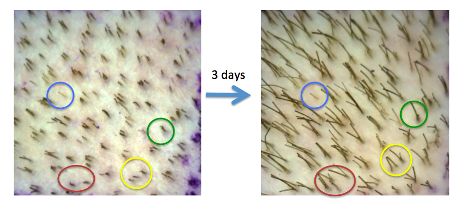 Figure 1. The Phototrichogram. Hairs that do not elongate over a three day period are telogen hairs. The blue circle shows a telogen hair. The green circle shows one telogen hair and one anagen hair. The red circle shows a significant increase in hairs. Hairs that were not present at day 1 but present at day 3 are anagen hairs.