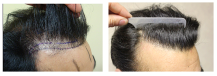 The frontal hairline is an area where decisions on target density are very important. A density of 40-45 follicular units per square cm was planned for this patient.