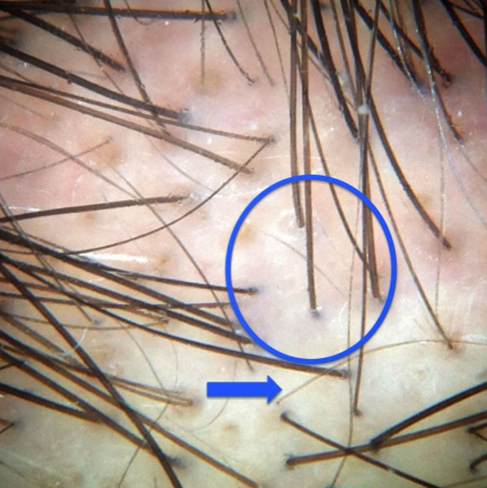 **CLICK TO ENLARGE ** A magnified view of genetic hair loss.