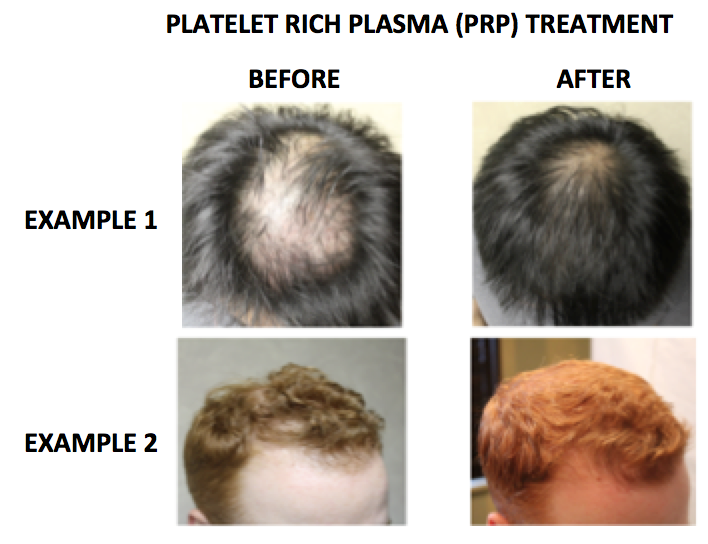 Platelet Rich Plasma Prp For The Treatment Of Genetic