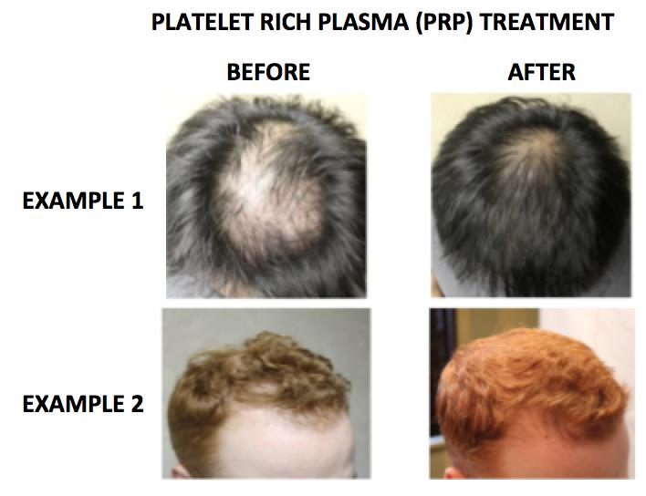 Hair loss treatment essay