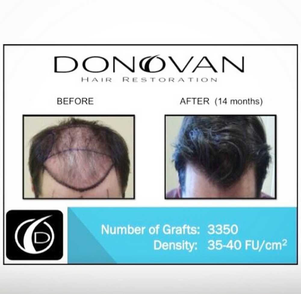 Dr Donovan Reflections Donovan Hair Clinic