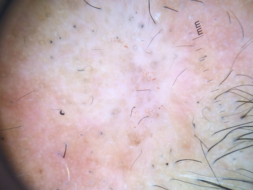 Trichotillomania: This patient's hair loss is caused the self induced pulling of hair.