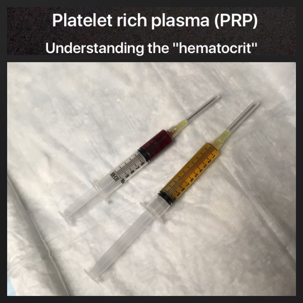 hematocrit machine