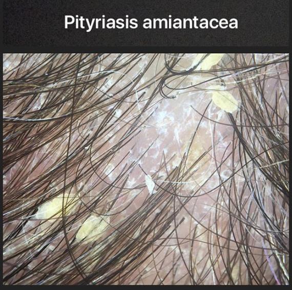 Pityriasis Amiantacea