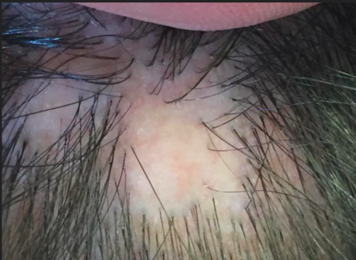 Image result for scarring alopecias