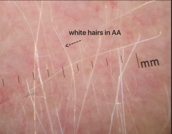 Will my hair grow back after alopecia areata