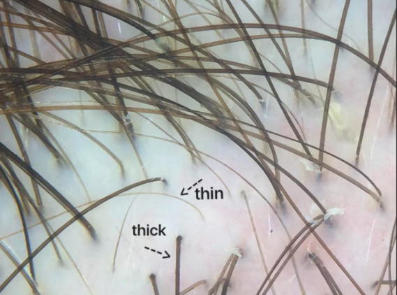 Anisotrochosis.png
