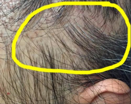 Hair Loss In Women Donovan Hair Clinic