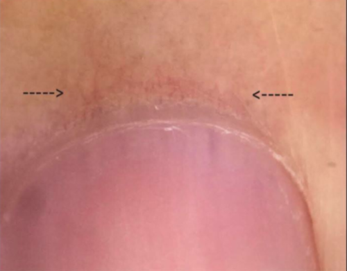 Nail changes in patients with hair loss donovan hair clinic nails are sometimes important to examine in patients with hair loss some autoimmune diseases produce changes in the nail plate and some produce changes in sciox Image collections