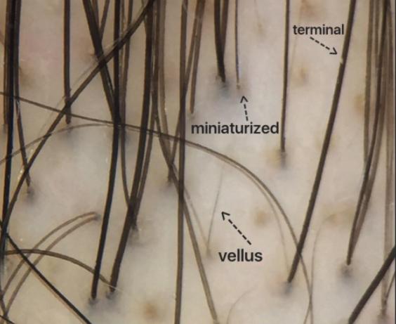 Different Hairs in AGA — Donovan Hair Clinic