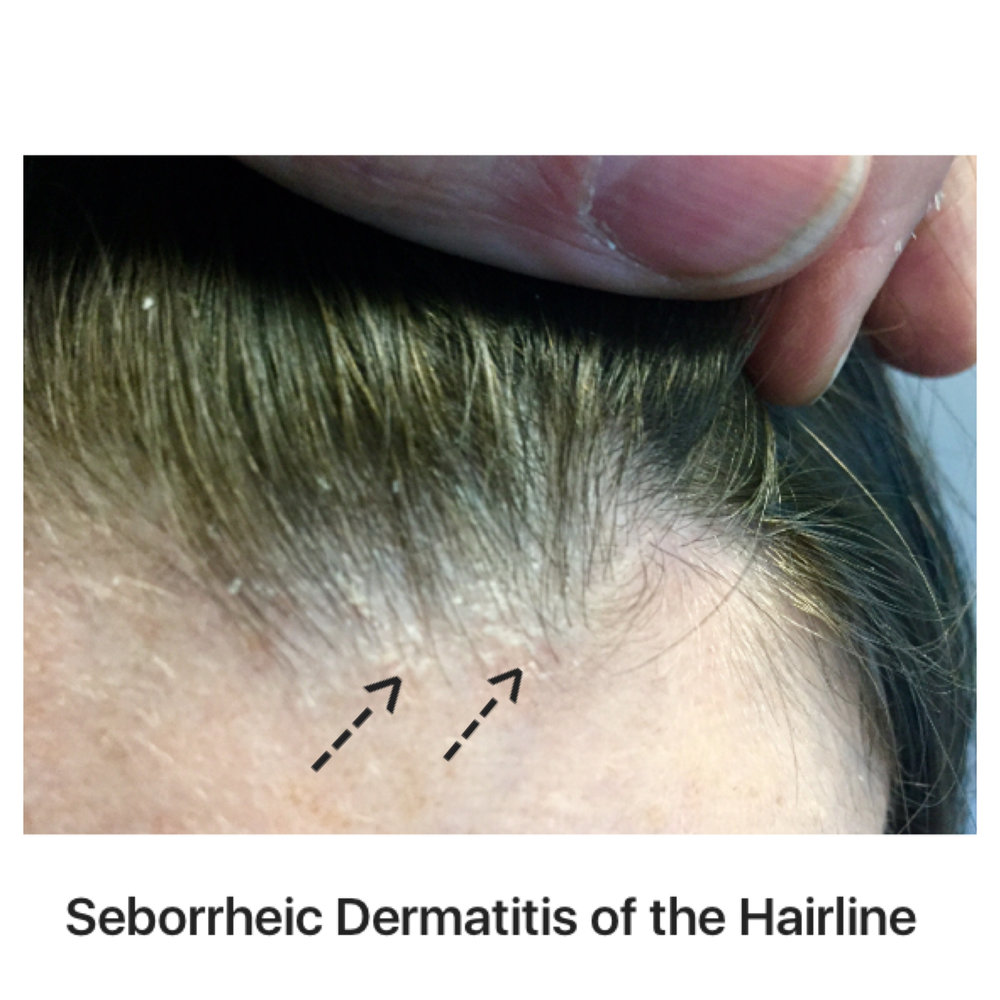 Sebderm-hairline.jpg